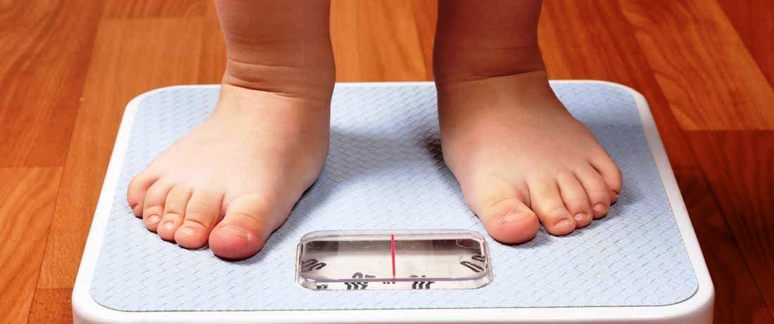 El sobrepeso en la infancia